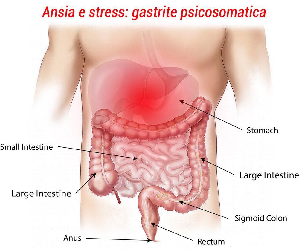 Gastrite-psicosomatica-psicologo-padova